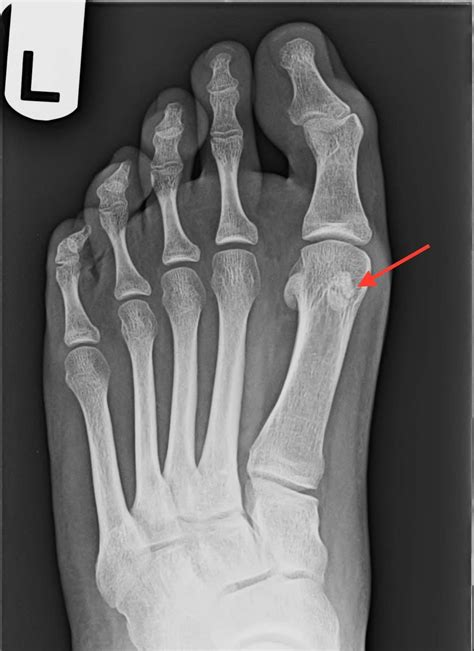 What To Expect After Foot Surgery   Northshore Foot & Ankle