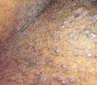 Ingrown Pubic Hair Cyst, Infected, Get Rid of it