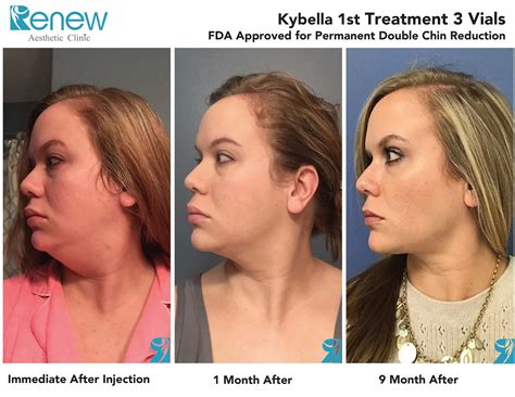Kybella for Double Chin | Renew Aesthetic Clinic and Med Spa