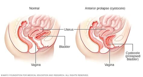Anterior prolapse (cystocele) - Symptoms and causes - Mayo