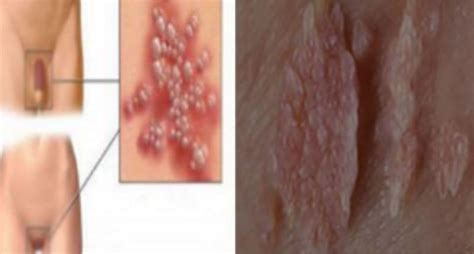 HPV – Human Papilloma Virus: Learn How To Protect Yourself