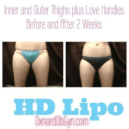 HD Liposuction Reviews and Before and After Oxnard and