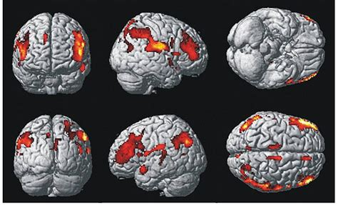 Ten Teenage Stoners' Brains Mapped in New Study: Results