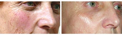 Laser Face Lift with Harmony ClearLift